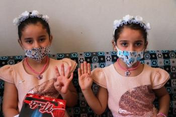 Adıyaman'da doğan Türkiye ve Suriye' adlı ikizler ilgi çekiyor